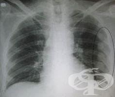 Рентгеново изследване на ребрата - изображение
