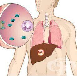 Алфа-1 антитрипсин тест - изображение