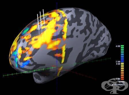 Функционален ЯМР на мозък - изображение