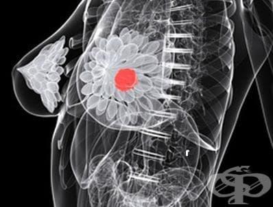 HER 2 тест при рак на гърдата - изображение