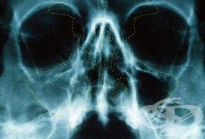 Рентгеново изследване на носната кухина - изображение