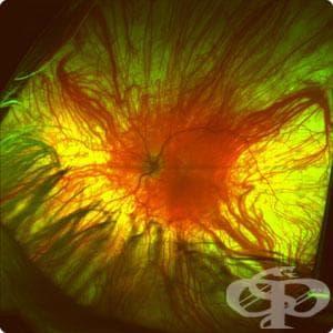 Изследване на ретината - изображение