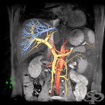 ЯМР на коремни органи - изображение
