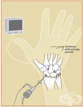 Артроскопия на китка - изображение