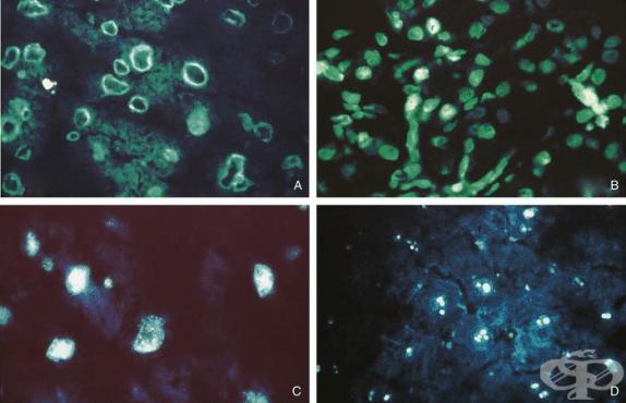 Антинуклеарни антитела (АНА, ANA) - изображение