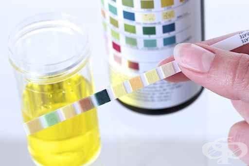 Анализ на урина - изображение