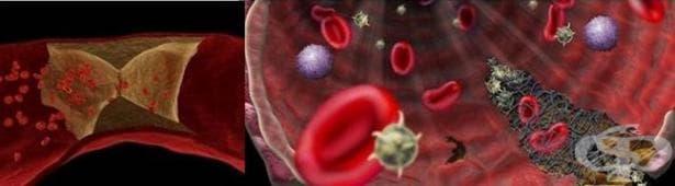 Анти-бета 2 гликопротеин I тест - изображение