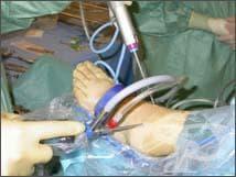 Артроскопия на глезен - изображение