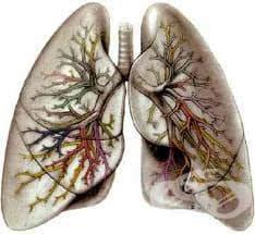 Биопсия на бял дроб - изображение