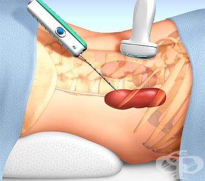 Бъбречна биопсия - изображение