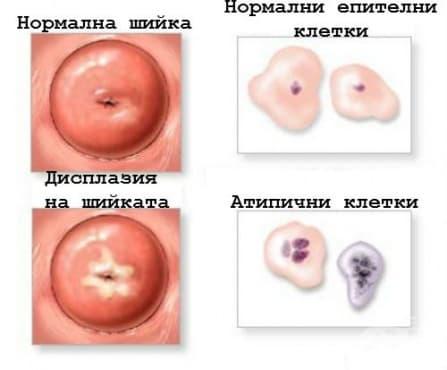 Биопсия на маточната шийка - изображение