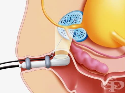 Биопсия на простатата - изображение