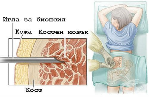 Костномозъчна аспирация и биопсия - изображение