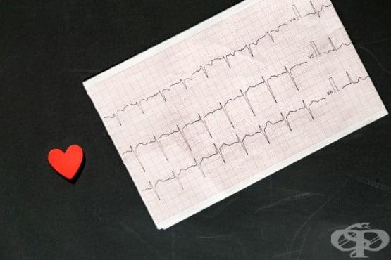 Електрокардиограма (ЕКГ) - изображение