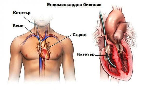 Ендомиокардна биопсия - изображение