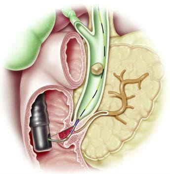 Ендоскопска сфинктеротомия - изображение