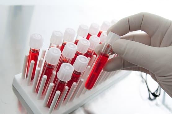Изследване на фоликулостимулиращ хормон (ФСХ, FSH) - изображение
