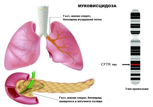 Генетични изследвания при муковисцидоза - изображение