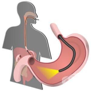 Горна ендоскопия - изображение
