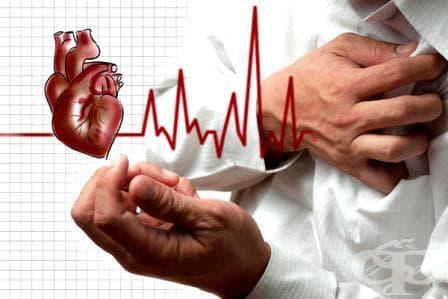 Образни изследвания при инфаркт на миокарда - изображение