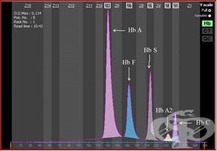 Електрофореза на хемоглобин - изображение