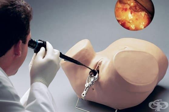 Хистероскопия - изображение