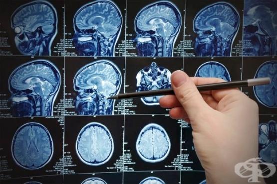 Компютърна томография (КТ) на глава - изображение