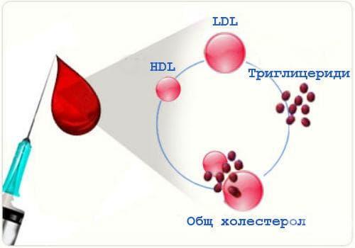 Изследване на триглицериди и холестерол - изображение