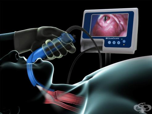 Ларингоскопия - изображение