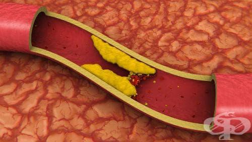 Изследване на LDL-холестерол - изображение