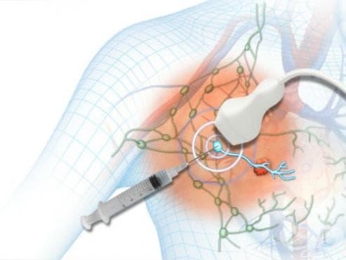 Биопсия на лимфни възли - изображение