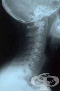 Рентгеново изследване на шията - изображение