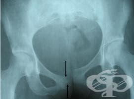 Рентгеново изследване на пубиса - изображение