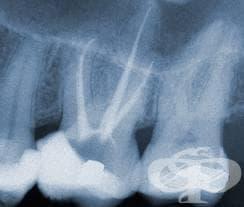Периапикална рентгенография - изображение