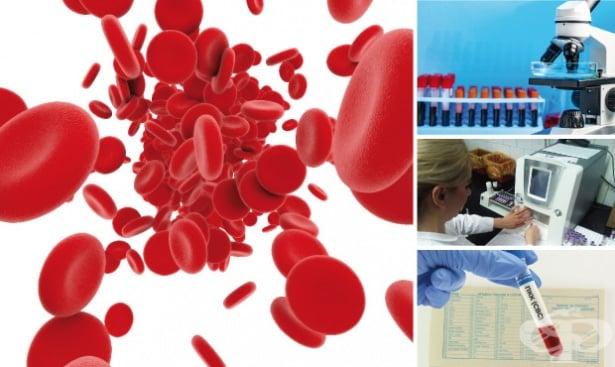 Пълна кръвна картина (ПКК) - изображение
