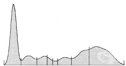Протеинограма - изображение