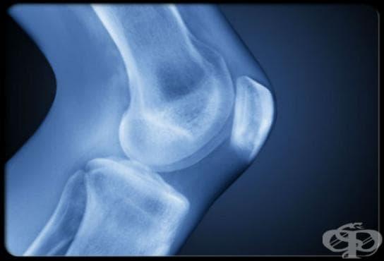 Рентгеново изследване (рентгенография) на коляно - изображение
