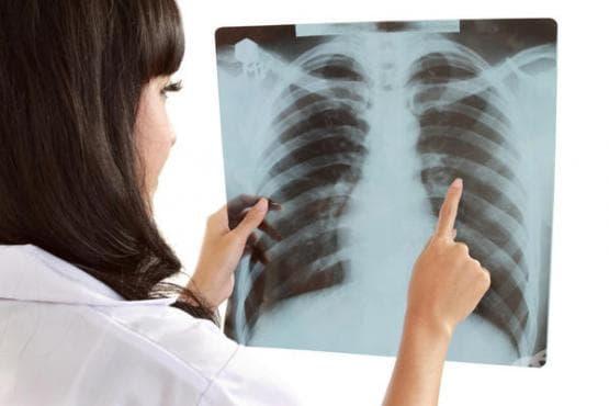 Рентгеново изследване (рентгенография) на гръден кош - изображение