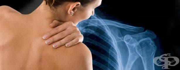 Рентгеново изследване на рамо - изображение