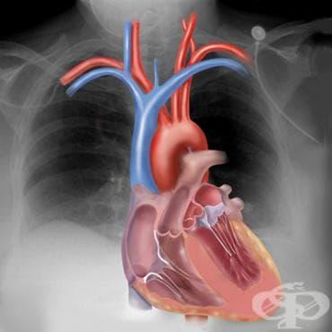 Рентгеново изследване на сърцето - изображение