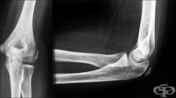 Рентгеново изследване (рентгенография) на лакът - изображение