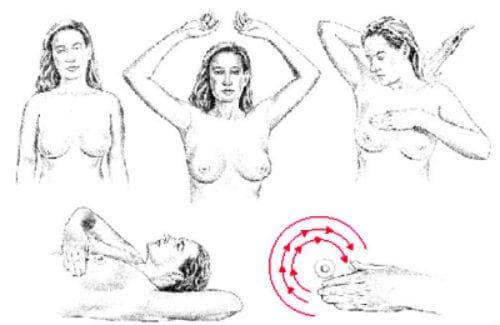 Самоизследване на гърдата - изображение