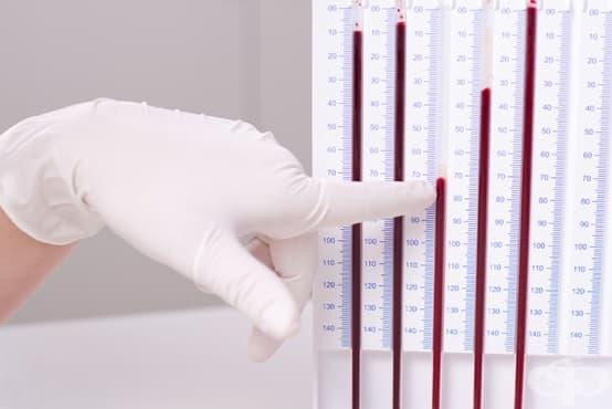 Скорост на утаяване на еритроцитите (СУЕ) - изображение