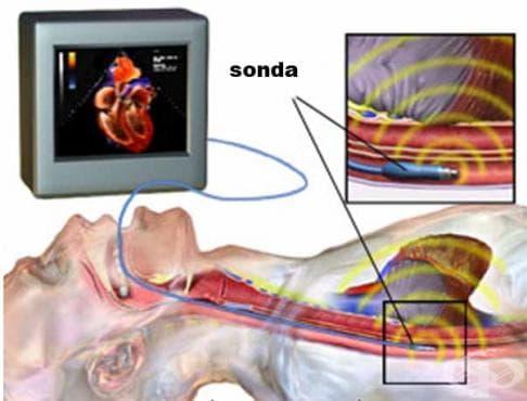 Трансезофагеална ехокардиография - изображение