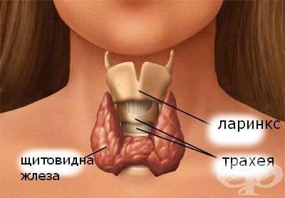 ТРАТ - изображение