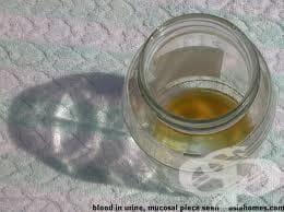 Меланин  в урината - изображение