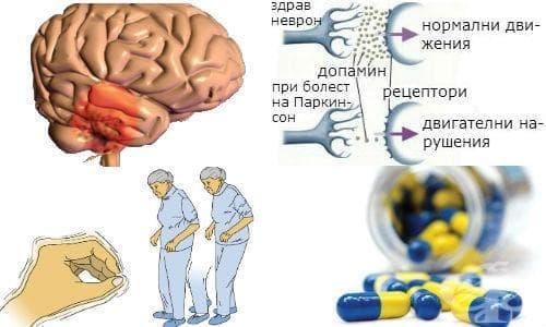 Антипаркинсонови лекарства - изображение