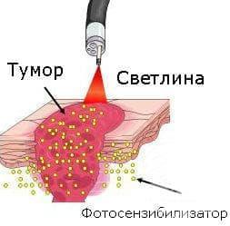 Фотодинамична терапия - изображение