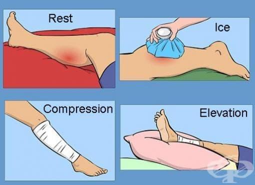 Бърз метод на лечение при травми (RICE) - изображение