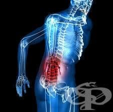 Облекчаване на болката - изображение